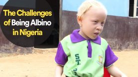 The Challenges of Being Albino in Nigeria